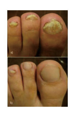 nail fungus treatment laser device