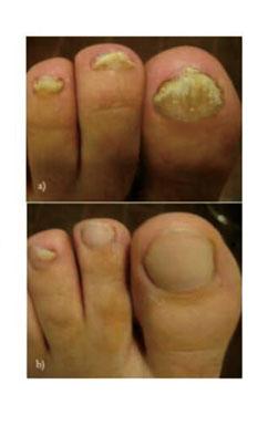 toenail fungus laser machine,nail laser machine,laser for onychomycosis machine
