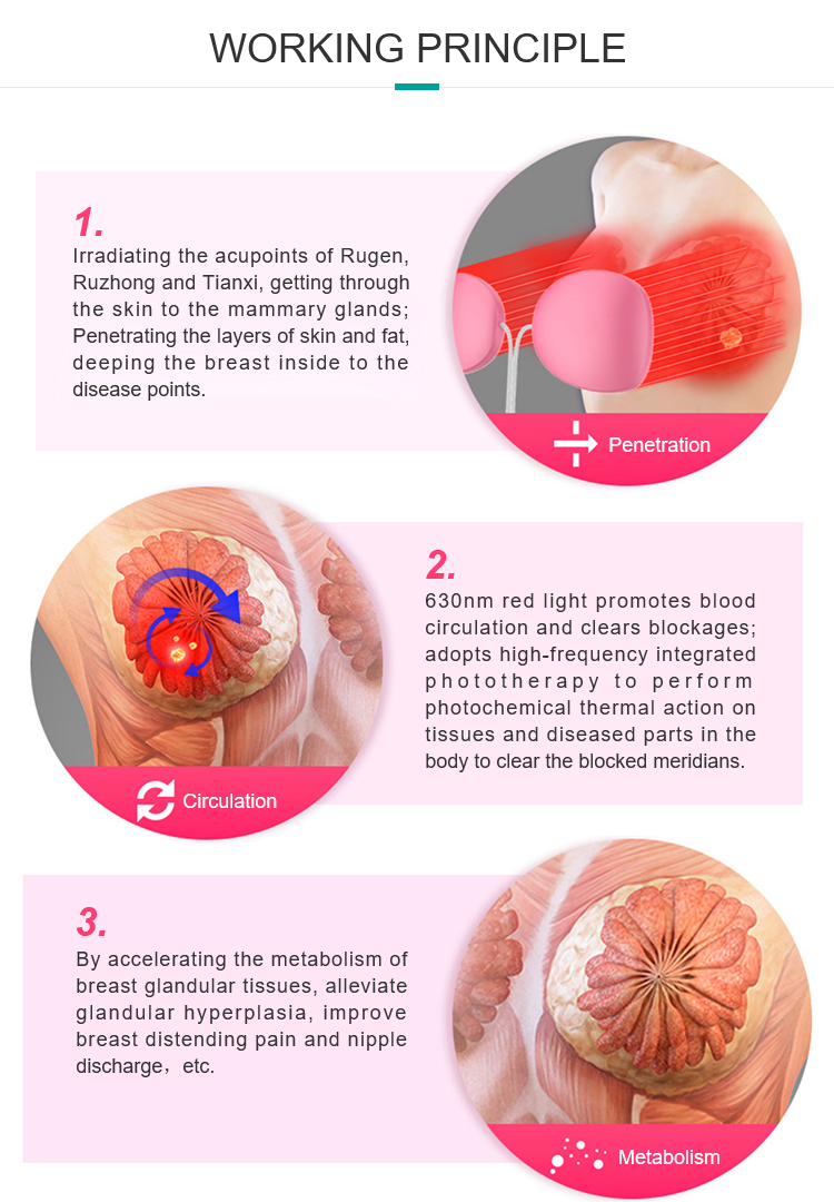 Breast fibroadenoma Areola