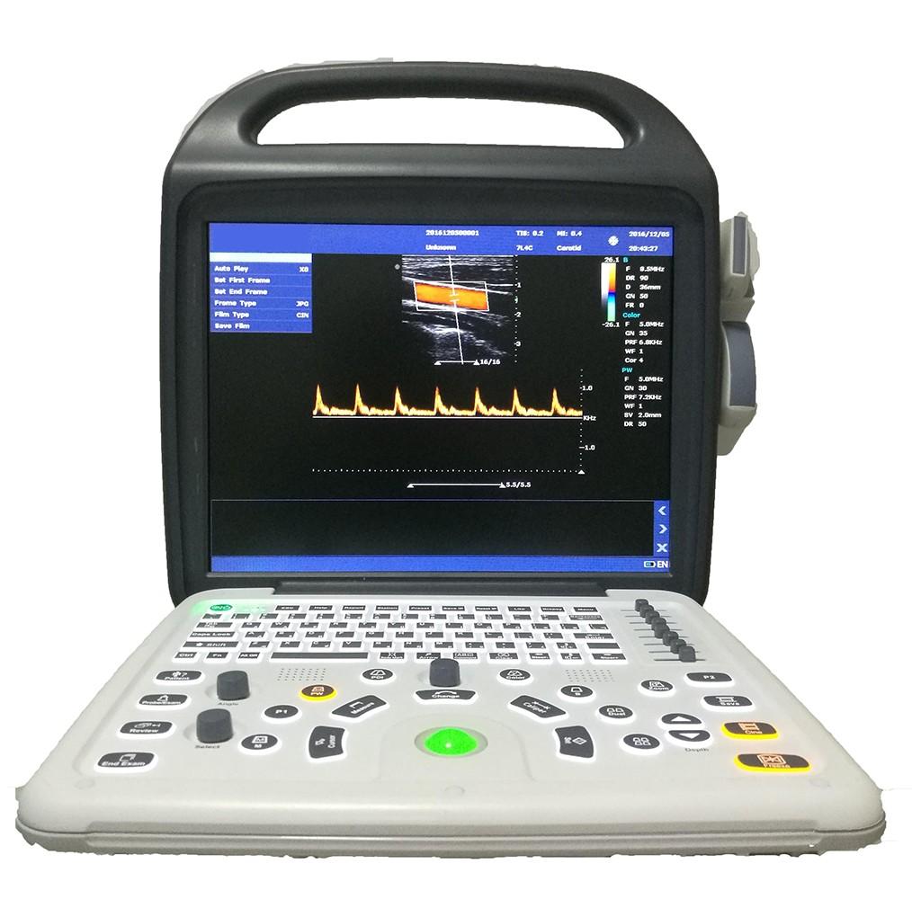 Handheld Color Doppler Ultrasound Manufacturers, Handheld Color Doppler Ultrasound Factory, Supply Handheld Color Doppler Ultrasound