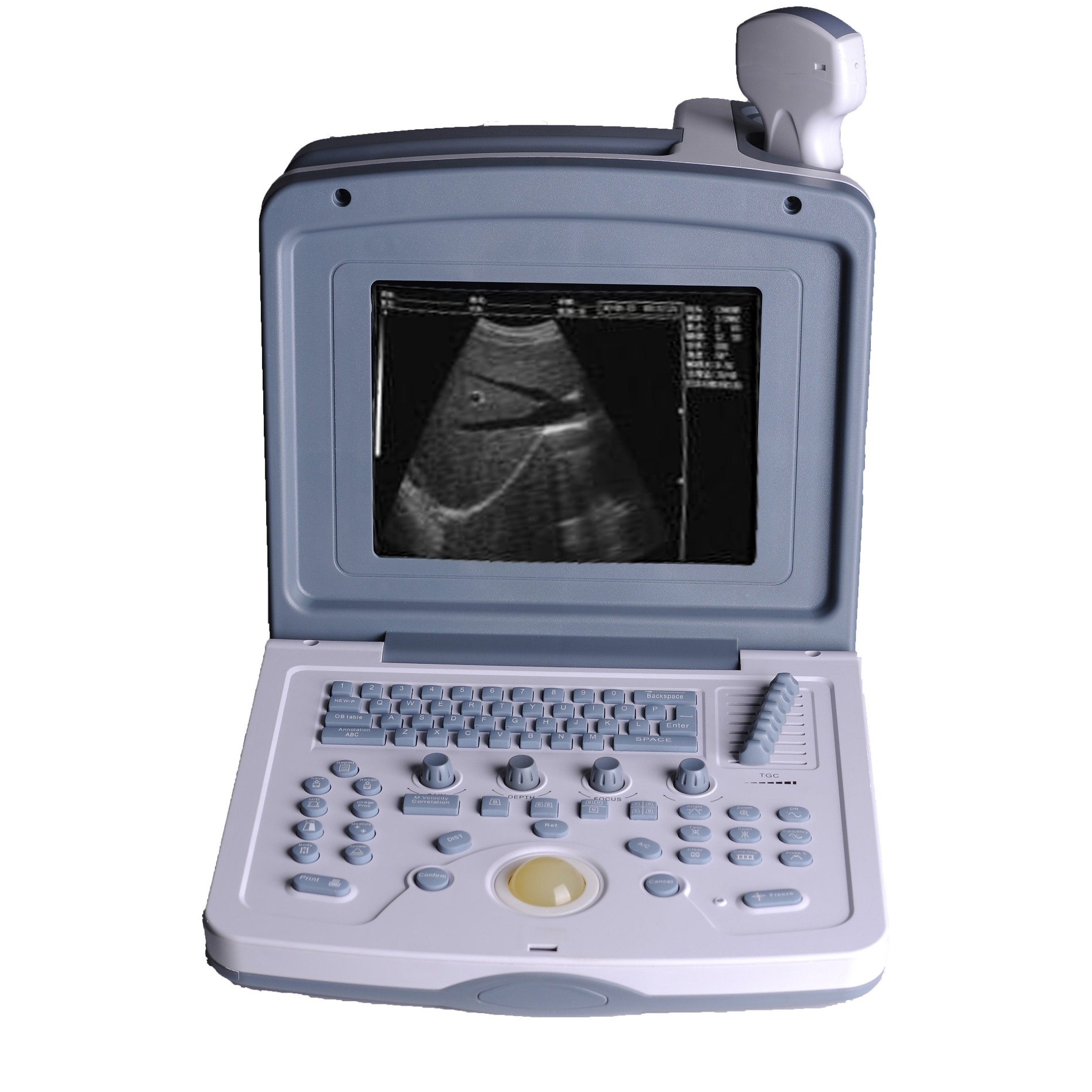 Good Quality Portable Ultrasound Machine with Battery