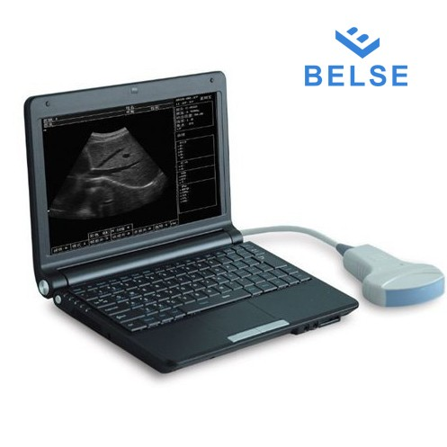 Portable Ultrasound Machine for Human