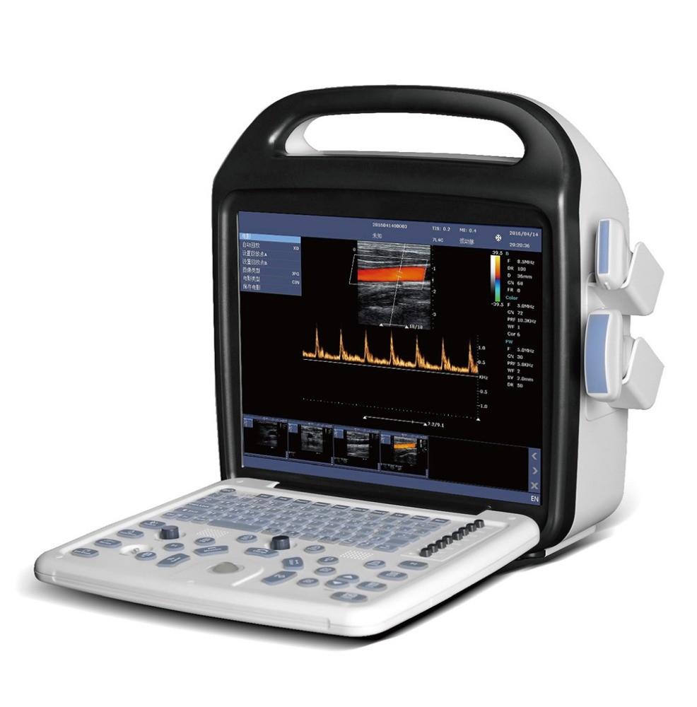 Handheld Color Doppler Ultrasound