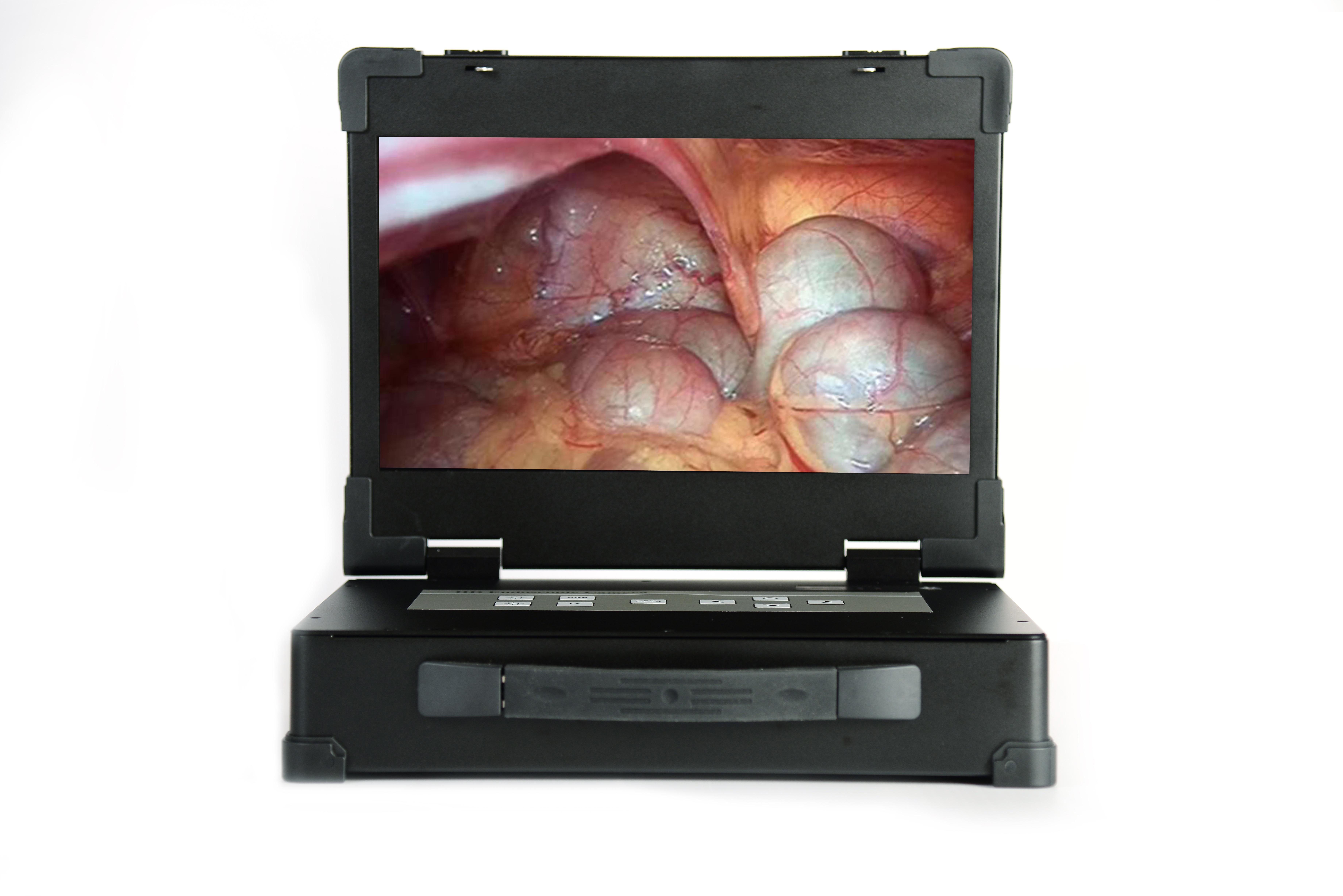 USB cámara 2.0 endoscopio