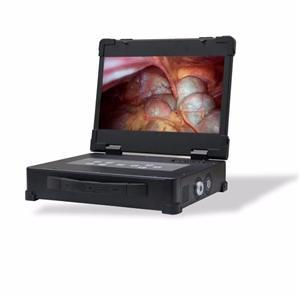 Rigid Endoscope Camera Manufacturers