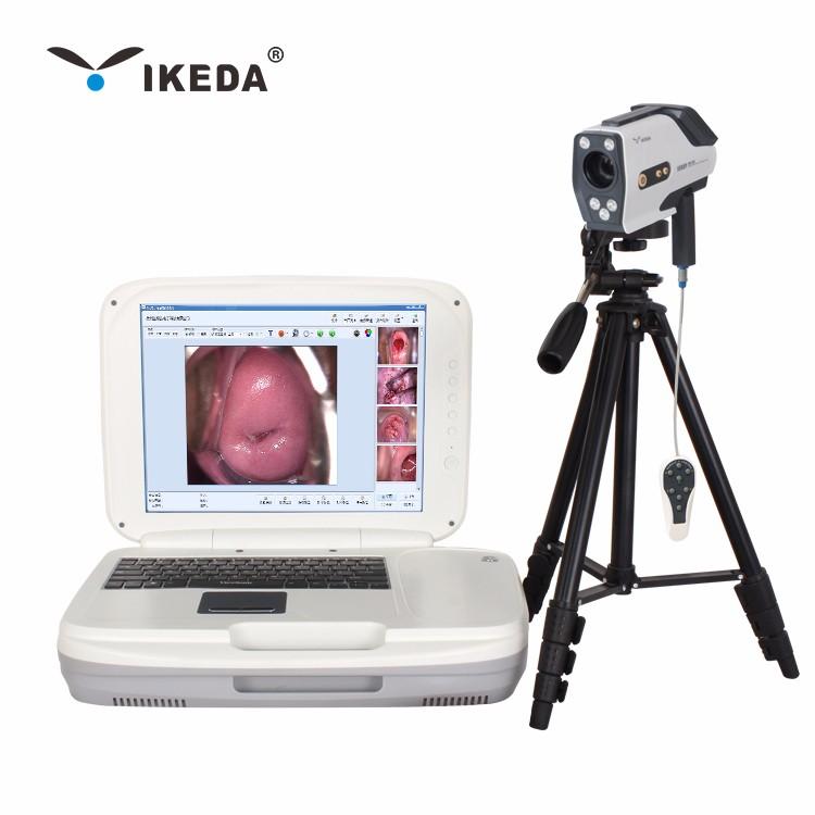 Hình ảnh soi cổ tử cung tốt Máy ảnh soi cổ tử cung HD,giá thấp Hình ảnh soi  cổ tử cung tốt Máy ảnh soi cổ tử cung HD Purchasing