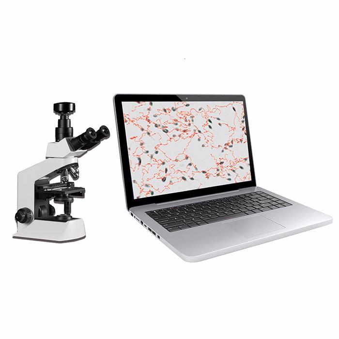portable semen analyzer,semen analysis Manufacturers, portable semen analyzer,semen analysis Factory, Supply portable semen analyzer,semen analysis