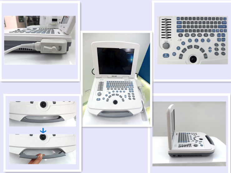 B/W Ultrasound