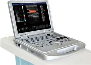 3d Baby Scan Laptop Ultrasound Scanner