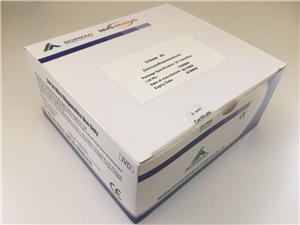 Self-Manufactured Antibody Troponin Test Equipment Manufacturers, Self-Manufactured Antibody Troponin Test Equipment Factory, Supply Self-Manufactured Antibody Troponin Test Equipment