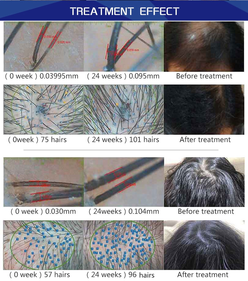LLLT hair loss therapy