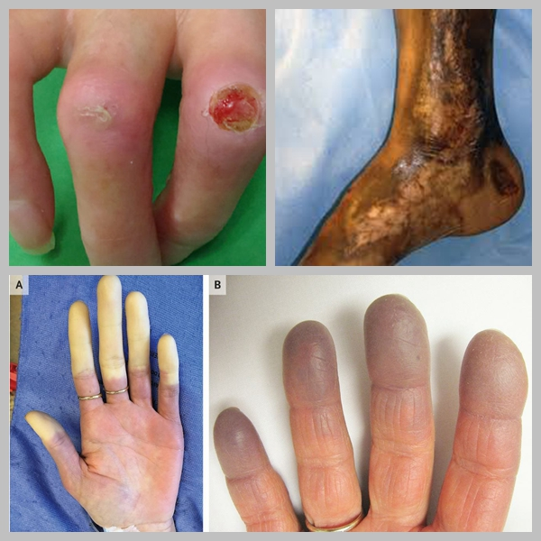Treatment of Scleroderma