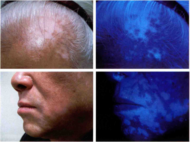 Dignosis phototherapy
