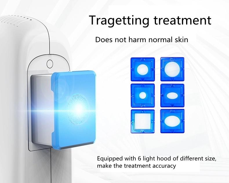 308nm excimer lamp for vitiligo
