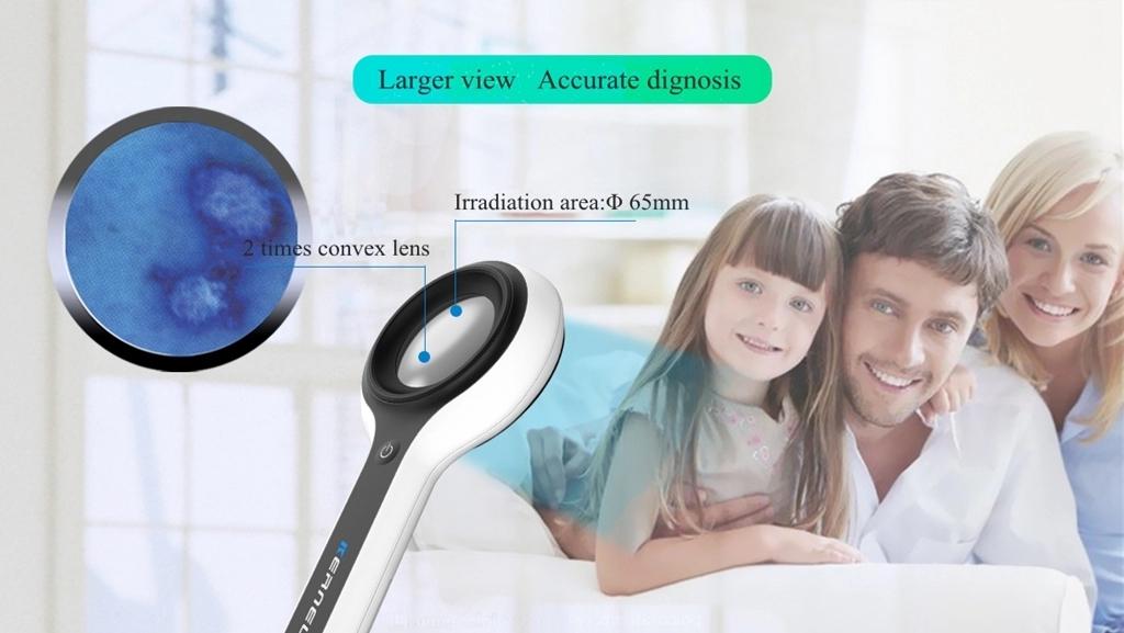 Фототерапия дигноза