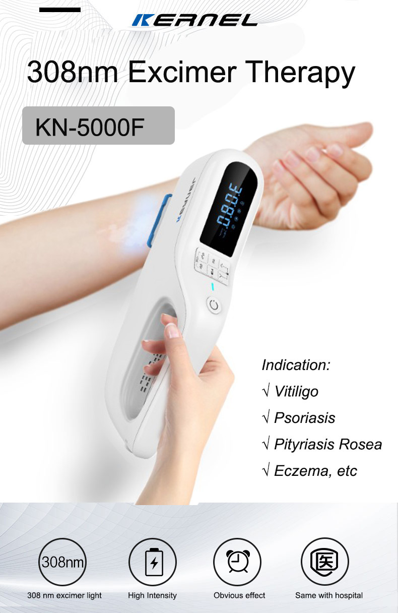 308nm excimer lamp voor vitiligo