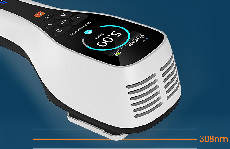 308nm Excimer Laser for psoriasis