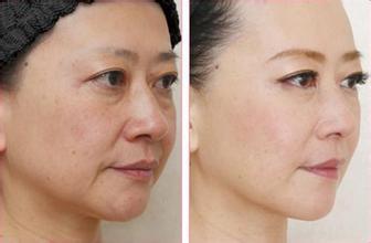 Facial Serum manufacturer