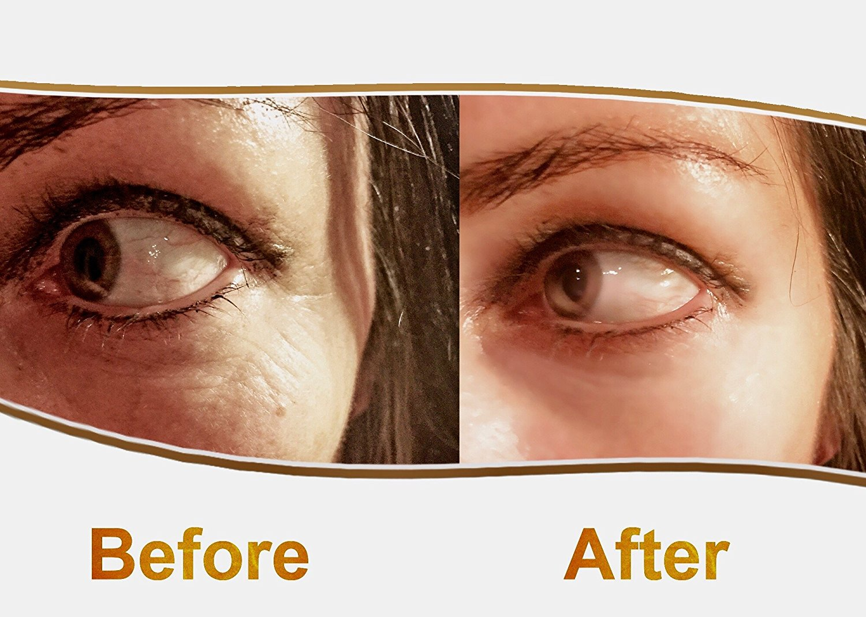 Private Label Eye Skin Care Cream Manufacturers, Private Label Eye Skin Care Cream Factory, Supply Private Label Eye Skin Care Cream