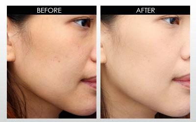 skin bleaching cream private label